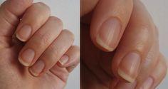 Já pensou em parar de tirar as cutículas? A prática deixa as unhas bem mais saudáveis e ainda deixa a tarefa de aplicar o esmalte bem mais fácil
