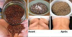 Le tueur de l'obésité : une cuillère à café par jour de cette épice vous fera perdre jusqu'à 15 kg en 3 mois! | Sante academy