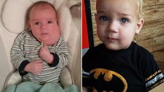 Baby With Mass 'the Size of a Football' Now Unrecognizable After Life-Changing Surgery Miracle Stories, Football S, Chubby Cheeks, After Life, Surgery, Face, The Face, Faces, Facial