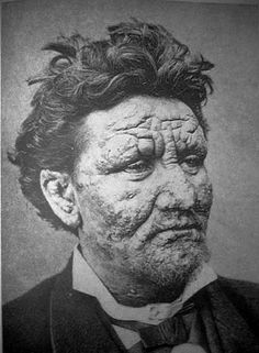 A 24-year-old man from Norway, infected with leprosy, 1886. #Leprosy