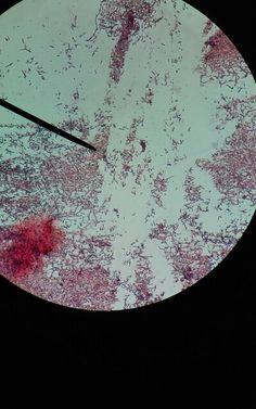 Bacillus subtilis Bacillus Subtilis, Scanning Electron Micrograph, Red Blood Cells, Neurons, Microbiology, Biotechnology, Fungi, Dna, Nursing