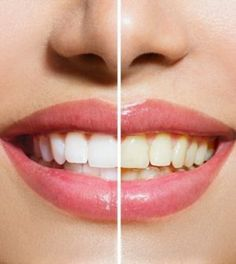 Natural Teeth Whitening Remedies How to Use Hydrogen Peroxide to Whiten Teeth - Home remedies to grow back receding gums. How to treat receding gums at home. Receding gums while pregnant at home remedy. Teeth Whitening Methods, Natural Teeth Whitening, Whitening Kit, Grow Back Receding Gums, Get Whiter Teeth, Clean Teeth, Stained Teeth, Cosmetic Dentistry, White Teeth
