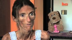 just bones: A Documentary about Anorexia