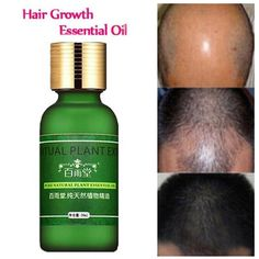 Natural Plant Extract Rapid Hair Growth Essence Essential Oil Liquid Ginseng  #Unbranded