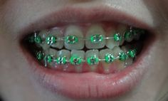 Viewing Gallery For - Neon Braces Colors