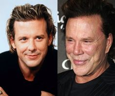 Mickey rourke plastic surgery before and after – LiZzY B. Mickey rourke plastic surgery before and after Mickey rourke plastic surgery before and after