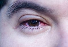 Pink eye... don't remember where I first saw this, but use a few drops of whey, from plain yogurt with active cultures, in the eye. I used it on my cat with an eye infection and my daughter tried it on her son... it works; and no trips to the Dr's office!