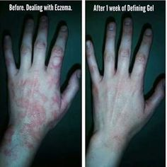 Eczema? Try it works defining gel!! I use it in my own son. It really does heal the skin.  yegwrapmom.com