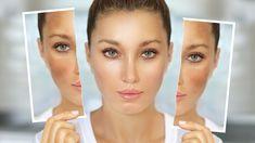 Vypadají jako pihy, ale pihy to nejsou. Jak malé pigmentové skvrny, za které může vaše náklonnost k opalování, zlikvidovat? Acne Skin, Acne Scars, Aesthetic Clinic, Skin Resurfacing, How To Treat Acne, Skin Care Regimen, Acne Treatment, Chemistry