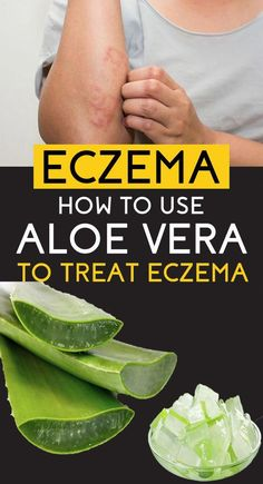 Why and how aloe vera is being claimed as one of the best solutions to eczema and other skin related problems as well. Let's understand some of the benefits of aloe vera in eczema Aloe Vera Gel, Aloe Vera For Eczema, Aloe Vera For Skin, Home Remedies For Eczema, Natural Health Remedies, Herbal Remedies, Natural Remedy For Eczema, Natural Cures, Natural Healing