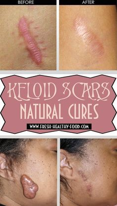 Keloids are a special kind of scars similar to benign tumors, because of their ability of abnormal multiplying and growing. They form where the scar is but start to spread over the edges of damaged tissues and spread to healthy ones. They are usually form