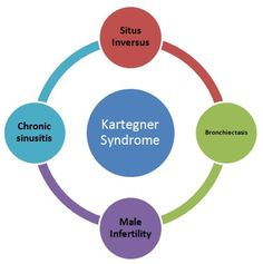 14 Best Kartagener Syndrome Images Ear Infection Signs Symptoms
