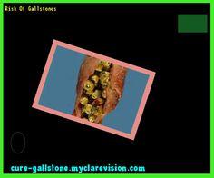 Risk Of Gallstones 144924 - Cure Gallstone