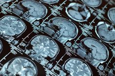 """Traumatic Brain Injury (TBI) is called the """"silent epidemic"""" because it is not well recognized or often well diagnosed but, yet it is estimated to affect approximately 1,500,000 Americans every year. According to the Centers for Disease Control and Prevention (CDC), this results in tens of thousands of deaths and hundreds of thousands of hospitalizations every year in the U.S."""