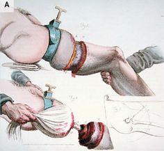 Risultati immagini per surgeon 18th century