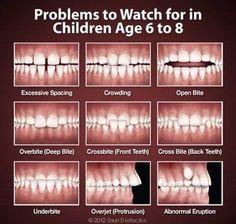 Cand este momentul sa va programati copilul la un medic ortodont?    Momentul optim pentru o prima consultatie la medicul ortodont este atunci cand primii dinti permanenti au erupt, atunci cand copilul are 6-7 ani.