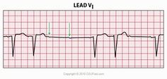 This ECG Interpretation course will show how to identify normal versus abnormal cardiac anatomy, cardiac cycle and electrical conduction through the heart.
