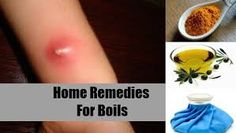 Symptoms associated with a boil, are reddened lumps within the layers of the skin that are tender and warm to the touch, and emanate a level of pain.