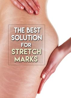 Stretch marks are a normal part for most girls and guys. When a person grows or gains weight really quickly (like during puberty), that person may get fine lines on the body called stretch marks. Home Remedies, Herbal Remedies, Natural Remedies, Health Tips, Health And Wellness, Health Fitness, Diy Beauty, Beauty Hacks, Beauty Ideas