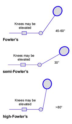 Fowler's positions
