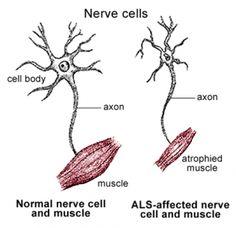 Motor neurone disease  www.BrainHealth.Rocks
