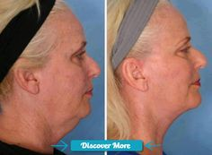 Got a sagging neck? Check out these all natural body wraps that works in 45 minutes. Works on any part of your body (hello belly) Summer's coming ladies, there's time to be ready if you start now :) More before and after pics at www.bodywraptoski... #fitnessbeforeandafterpictures, #weightlossbeforeandafterpictures, #beforeandafterweightlosspictures, #fitnessbeforeandafterpics, #weightlossbeforeandafterpics, #beforeandafterweightlosspics, #fitnessbeforeandafter, #weightlossbeforeandafte...
