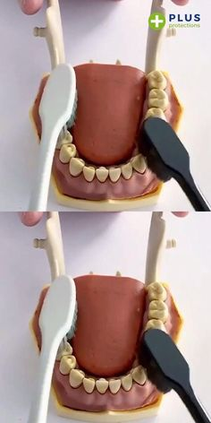 Tooth Enamel, Gap Teeth, Gum Health, Dental Care, Dental Hygiene, Cool Gadgets To Buy, Healthy Teeth, Bad Breath, Fresh And Clean