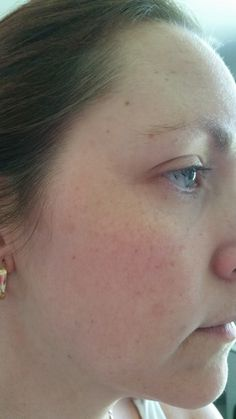 This is how my skin looks today. You can see plenty of freckles and ... ~Learn how to lighten skin naturally here http://meladermpigmentreducingcomplex.org/how-to-lighten-skin/