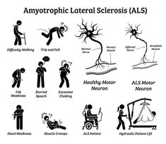 Amyotrophic Lateral Sclerosis ALS Disease Signs Symptoms Sickness Illness Medical Condition Nervous System Neurological Icons PNG SVG Vector Als Symptoms, Disease Symptoms, Signs And Symptoms, Physical Therapy School, Occupational Therapy, Amyotrophic Lateral Sclerosis, Body Gestures, Motor Neuron, Neurone