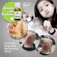 Wellness Products, Tea Tree, Essential Oils, Children, Aromatherapy, Remedies, Fur, Naturaleza, Toddlers