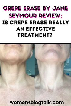 Crepe Erase Gave me Results! Home Remedies For Wrinkles, Skin Care Home Remedies, Acne Remedies, Anti Aging Tips, Anti Aging Skin Care, Crepe Skin, Beauty Advice, Body Treatments, How To Treat Acne