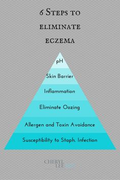 Natural Eczema Treatment in 6 simple steps!