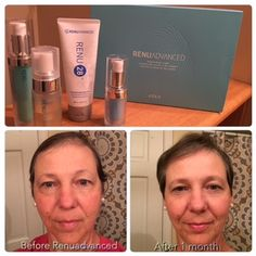 Check out these amazing Redox Signaling molecules found in ASEA's Renuadvance Skin and Body Care. Contact me at chamsley.teamasea.com