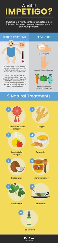 What is impetigo + 9 treatments - Dr. Axe