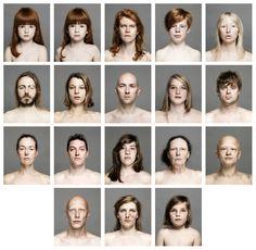 Nick Proot - Tweede prijs ex æquo - Superhuman Portaits of congenital phenomena - Fotografie - Academie voor Beeldende Kunst Gent Art