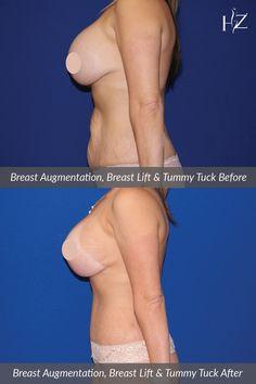 3 d tummy tuck and breast augmentation surgery pics 999