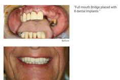 One of our remarkable case studies a full mouth bridge replaced with 8 dental implants. Check out our website for more of our successes! #FunAtTheDentist #HarleyDental #Dentist #HarleyStreet #ConfidentSmile #DentistLondon #London #Luxury #Implants #Cosmetics #Fashion #LondonLife #Invisalign #SmileSolutions #TwyfordDental #LondonLife #Personalisation #Veneers #AwardWinning #MakeUp #Beauty #Teeth #Dental #Straightening #CosmeticDentistry #Orthodontist by twyford.dental Our Cosmetic Dentistry…