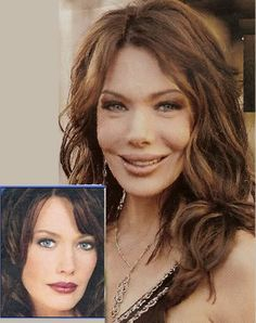 bad face lifts - Bing Images - oh no, she was drop dead gorgeous! Why!?!??