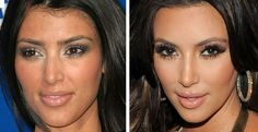 I love kim but wow...can i get her surgeon??