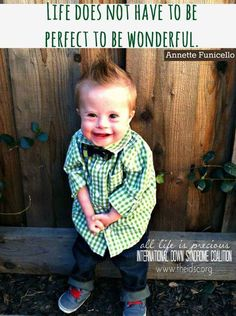 Down's Syndrome is so unique and so great. If you have Down's Syndrome, you are so special and a blessing from God!