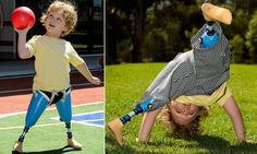 The boy born with no ankles or knees who can now own a pair of shoes for the first time - thanks to his amazing new legs