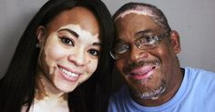 The world is in celebration following the news that Cuban researchers and doctors have discovered an effective cure for vitiligo. This comes at a period where the number of victims to this skin diseases continues to rise globally. According to the American Vitiligo Research Foundation (AVRF), 1 to 2% of the world's population suffers from