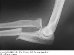 Monteggia's Fracture Radiograph A Monteggia's fracture is defined by a fracture of the proximal one-third of the ulna combined with dislocation of the radial head
