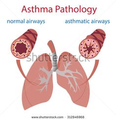 vector illustration of lungs and airways. Normal and asthmatic. - stock vector