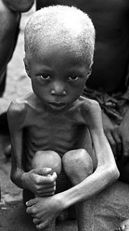 The World Hunger-Food Choice Connection: A Summary:    Realize that 82% of the world's starving children live in countries where food is fed to animals that are then killed and eaten by more well off individuals in developed countries like the US, UK, and in Europe.
