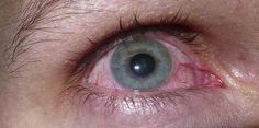 #Leverkusen: Sechs Verdachtsfälle auf Augengrippe in Leverkusen - Kölner Stadt-Anzeiger: Kölner Stadt-Anzeiger Leverkusen: Sechs…