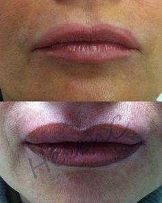 Correzione contorno labbra con riempimento e sfumatura - pigmento biotek