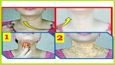 How To Remove Dark Black patches, Dark Spots,Hyper pigmentation, Around Your Mouth