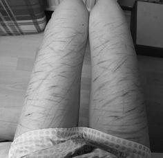 emo cuts on their legs