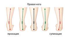 Нейтральная или избыточная пронация и супинация стопы при беге. Что это? Как определить тип?